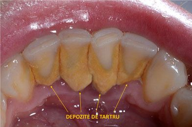 Bicarbonatul de sodiu  este un compus chimic sub forma unei pudre albe. Nu este folosit doar in domeniul culinar, ci si ca produs de cosmetica.   Pentru  combaterea tartrului dentar , apelati cu mare incredere la  bicarbonatul de...