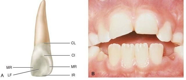 68 best encia images on Pinterest   Dental, Medical science and Anatomy