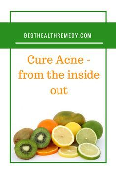 When you are working on fighting your acne, it sometimes comes down to what you choose to put into your body. Herbal tea for acne, facial scrub for acne, back acne, myths about acne, acne myths, fight acne, adult acne, adult acne causes, adult acne treatment, adult acne home remedies, adult acne medication, adult acne products, hormonal acne, what is acne