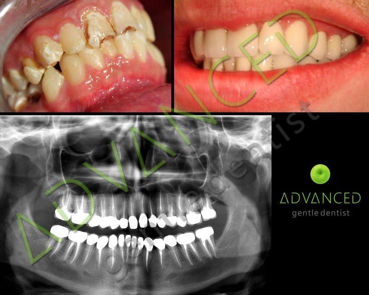 Coroanele reprezinta solutia ideala de a reconstrui un dinte fracturat sau care a fost slabit de carie.