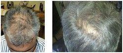 Karboksyterapia - pobudzenie cebulek włosowych przed i po zabiegu