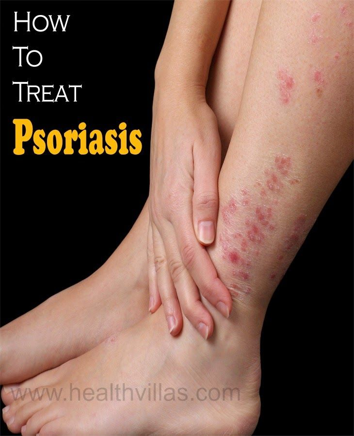 DIY Psoriasis Remedies ~ How To Treat Psoriasis With Diet | Health Villas