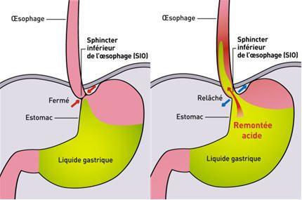 Le reflux gastro-oesophagien (RGO) désigne la remontée d'une partie du contenu de l'estomac dans l'oesophage (le conduit reliant la bouche à l'estomac). L'estomac produit des substances très acides (les sucs gastriques) qui aident à la digestion des aliments....