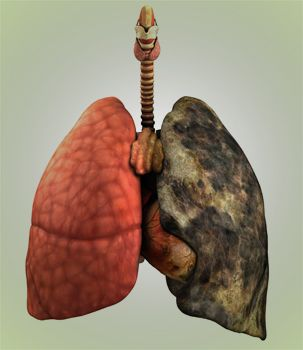 Chronic Obstructive Pulmonary Disease (COPD) Overview - Comprehensive overview covers Causes, Symptoms and its Homeopathic Treatment. Select Your Health Plan.
