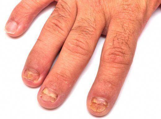 Beste schimmelbehandeling voor huid-ID: 4701865860 #CureForFungalNailInfection -…
