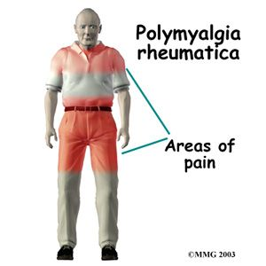 Image detail for -Polymyalgia Rheumatica (PMR)  Cell Arteritis (Temporal Arteritis ...