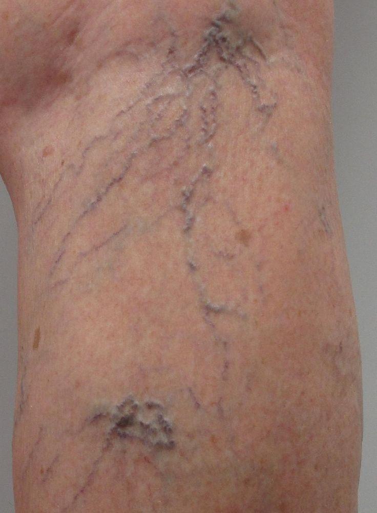 Operazioni alle malattie di cancellazione di arterie delle estremità più basse