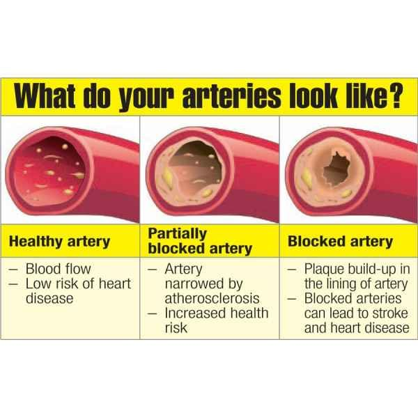 Top 6 Artery Cleansing Foods