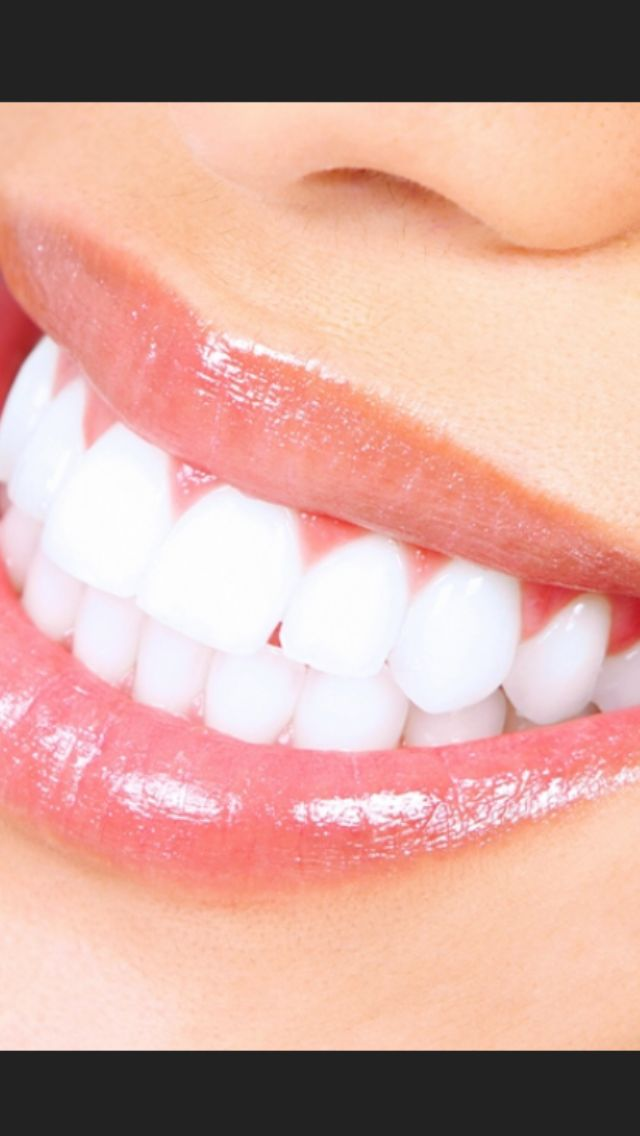 Find this Pin and more on Dental