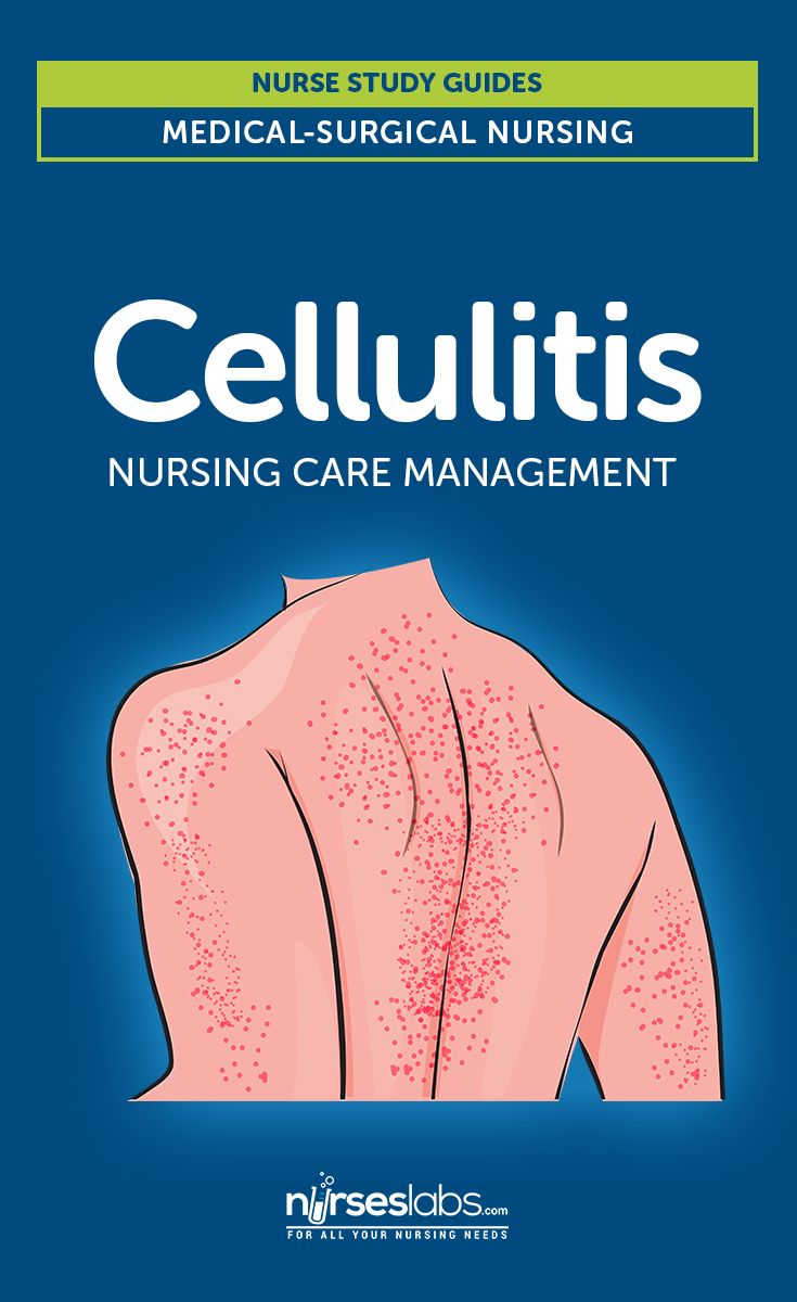 Cellulitis – Cellulitis spreads rapidly all over the body, yet cannot spread from one person to another.  Cellulitis is a common, potentially serious bacterial skin infection. It indicates a non-necrotizing inflammation of the skin and subcutaneous tissues derived from acute infection.