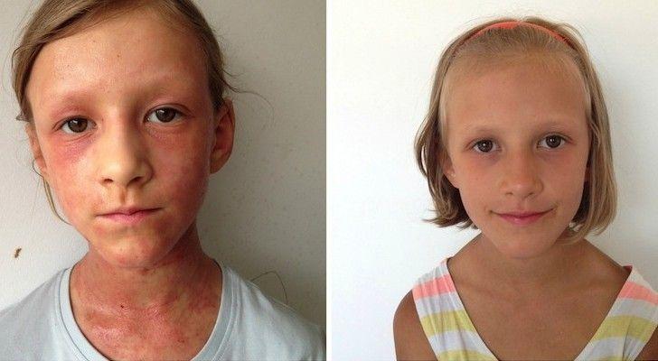 AC24.cz - Jak matka pomocí syrové stravy vyléčila dceři atopický ekzém