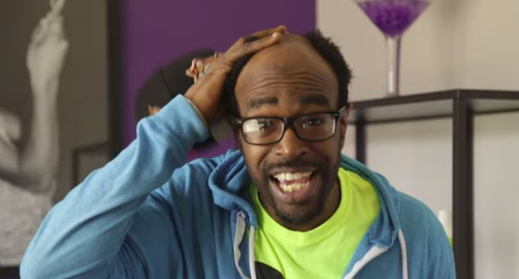 Bald Guy Gets His First Man Weave!