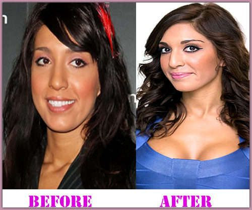 Plastic Surgery Heidi Montag Courteney Cox And More: 52 Best Images About Plastic Surgery Celebrities Blog On