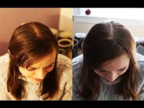 Baking Soda Stops Hair Loss & Promotes Hair Growth In No Time! Baking Soda Stops Hair Loss & Promotes Hair Growth In No Time!  Heating pop is a super adaptable. It can be utilized around the house for cleaning however heating pop can be additionally utilized for treating some medicinal issues.   Have you ever pondered putting heating pop on your hair?Baking pop has probably the most stunning advantages for your hair. You can utilize preparing pop rather than your general cleanser.   HAIR…