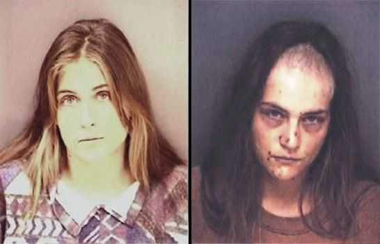 Meth addict | just say hell NO to drugs | Pinterest ...