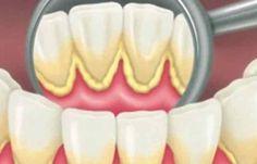 cum sa ne curatam si sa albim dintii fara a merge la stomatolog