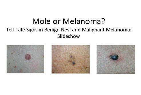 Using viagra to combat malignant melanoma