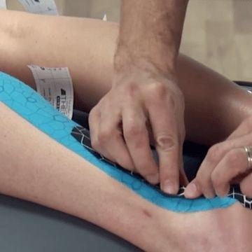 taping technique for achilles pain