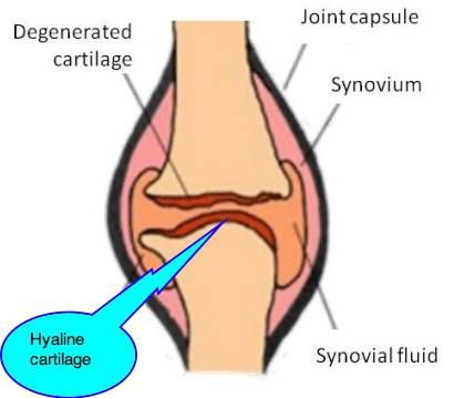 What is hyaline /ˈhaɪ.ə.lɪn/cartilage and where is it found please click here to see what is hyaline cartilage and where is it found #stepbystep