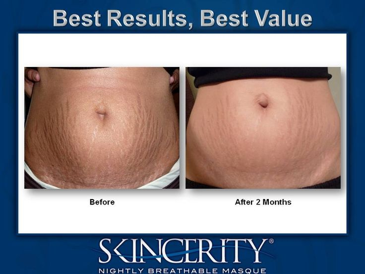 Skincerity on stretch marks, before and after photo. No gimmicks, just results. www.bsandy.mynucerity.biz
