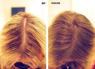 Выпадают волосы? Просто попробуйте этот рецепт и они начнут расти, как сумасшедшие! 100% результат!