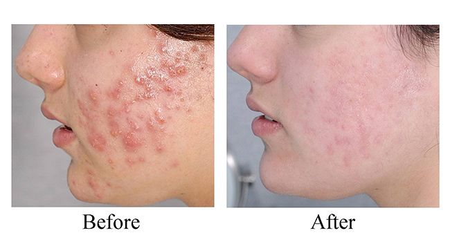 Struggling with Acne? Gain your confidence back! Start your acne treatment today @ http://goo.gl/rDxaPQ   #dermatology #London #skindisease #health