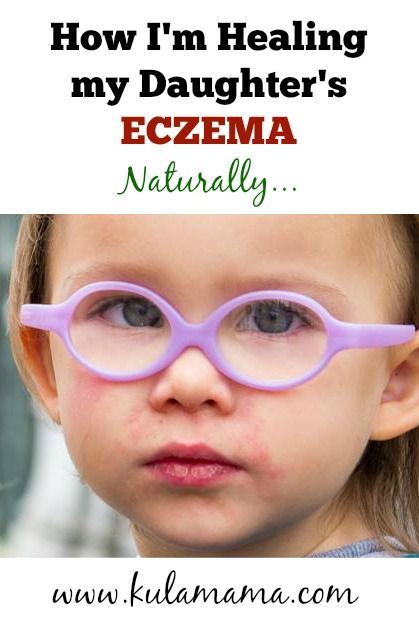 how to know if baby eczema is healing
