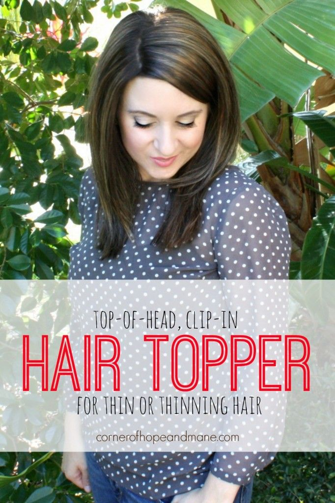 The 25+ best Thinning hair women ideas on Pinterest | Solution for ...