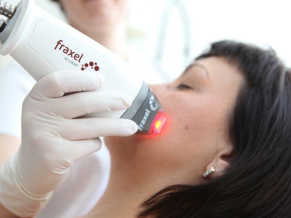 Zabiegi laserem Fraxel doskonale odmładzają skórę twarzy. Dzięki niemu pozbędziesz się zmarszczek i przebarwień.
