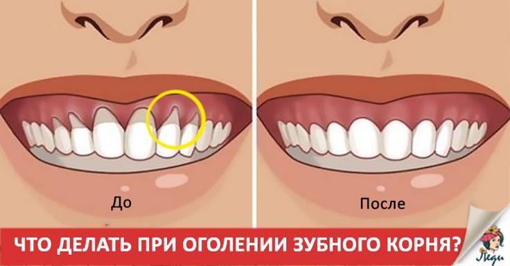 У многих людей есть проблемы с тем, что оголилась шейка или корень зуба. Такая проблема встречается довольно часто и, если вы заметили подобное у себя, то ОБЯЗАТЕЛЬНО покажитесь своему врачу и пройдите полное стоматологическое лечение, чтобы выявить причину! Многие сталкиваются с оголением корня, шейки зуба. Чтобы выявить причину такой проблемы, нужно пройти полное стоматологическое обследование. …