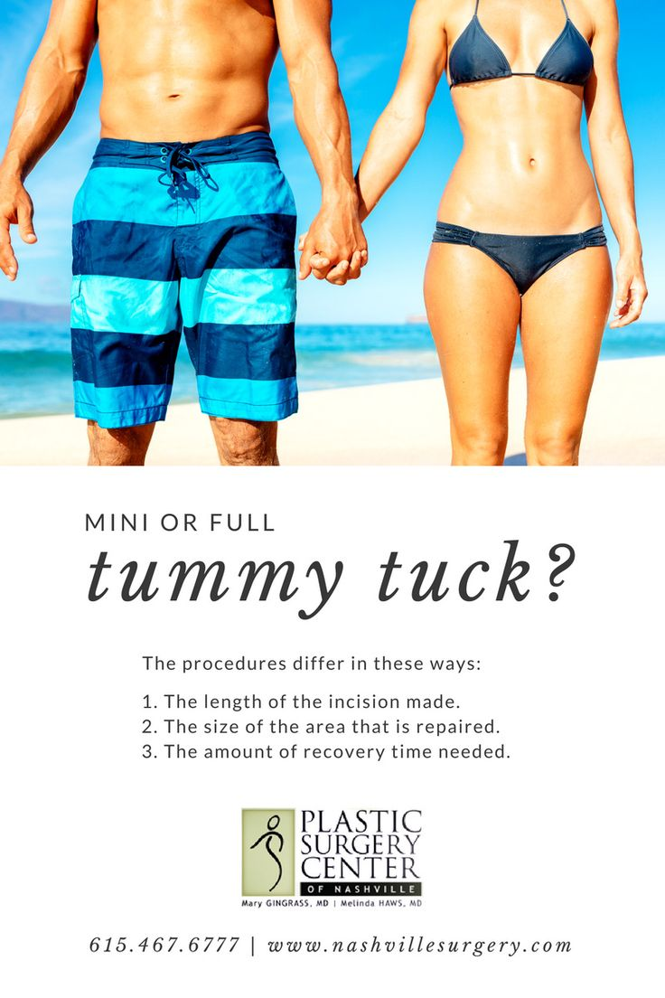 Mini or Full Tummy Tuck?