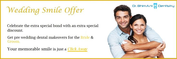 Wedding Smile Offer