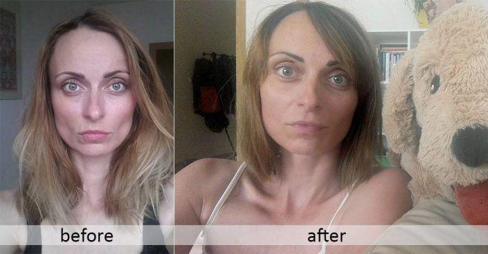 Nesprávne cvičenie tváre môže mať aj následky