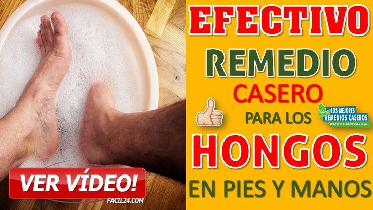🔴👌 COMO QUITAR LOS HONGOS DELAS UÑAS DELOS PIES RAPIDO - REMEDIO CASERO PARA LOS HONGOS DELOS PIES - YouTube