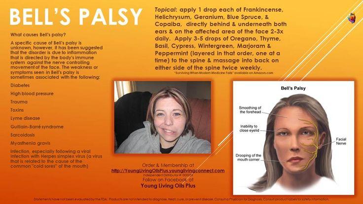 Young Living Essential Oils: Bell's Palsy Facial Paralysis | http://www.BibleOilsForHealth.com