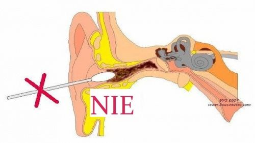 Uszy należy czyścić z woskowiny z taką samą regularnością jak resztę ciała.Poznaj najbezpieczniejsze domowe metody usuwaniawydzielinyz uszu.