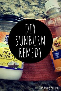 Hate the pain and redness of a sunburn? Check out this super easy DIY Sunburn Remedy using things you already have at home