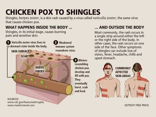 Shingles, herpes zoster, is a skin rash caused by a virus called varicella zoster, the same virus that causes chicken pox.