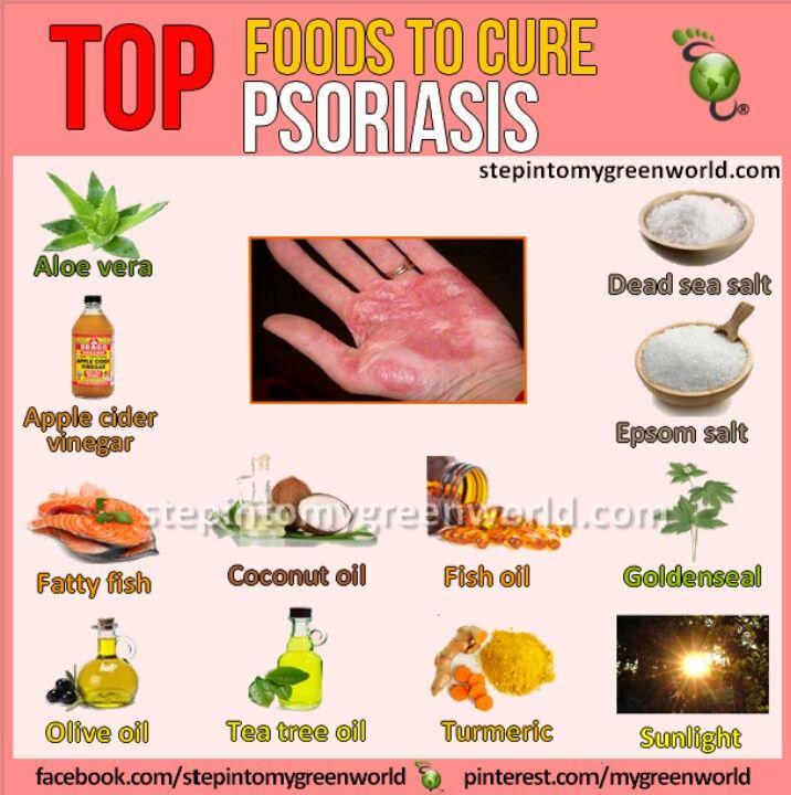Natural Psoriasis Arthritis Treatment