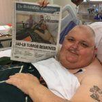 Doctors Remove Man's 140-Pound Abdominal Tumor