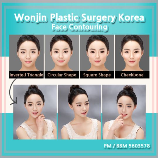 Wonjin Plastic Surgery Clinic Korea Korean Best Face Contouring at Wonjin Beauty Medical Group, perfect for you who has problem with face contouring, or wants to get a perfect V-line shaped face, with also considering the proportion of ideal face ratio.