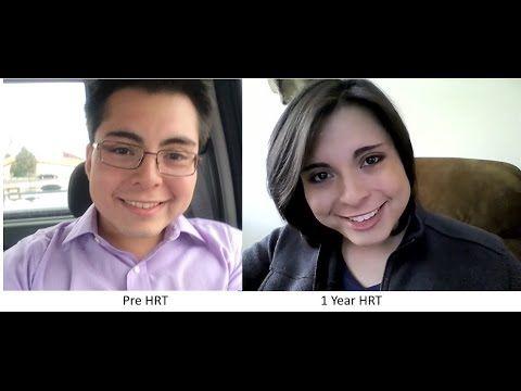 1 Year on MTF Hormones Timeline
