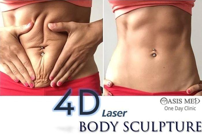 4D #LASER Λιπογλυπτική: Γράμμωση χωρίς κόπο - Τέλειο αθλητικό σώμα!  … η 4η διάσταση στη LASER «γλυπτική» του σώματος!  www.dermaclinic.oasismed.gr  #oasismed #bodysculpture #dermatologist #dermatology #heraklion #4dlaser #beauty #body