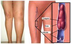 A Trombose Venosa Profunda (TVP) é a Formação de um Coágulo Sanguíneo em Uma ou Mais Veias Localizadas na Parte