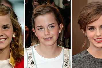 14 Celebrities Who Prove Braces Can Change Your Entire