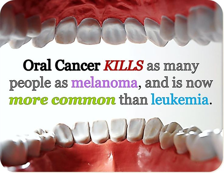 #Oral Cancer kills more people than Leukemia