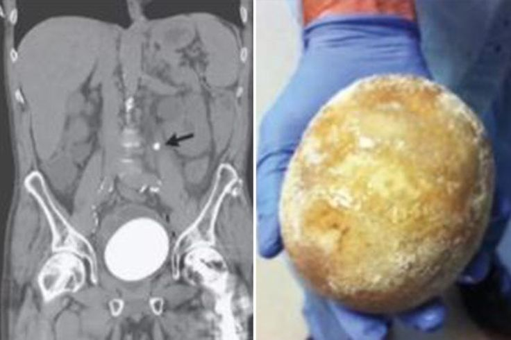 Man rushed to hospital in agony has stone the size of an OSTRICH EGG removed from his bladder - The Sun #757Live