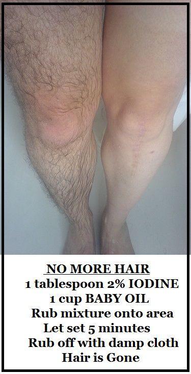 1tbsp de iodo 2% 1cup de óleo de bebê Esfregue sua área cabeludo com a mistura e deixar o jogo por apenas 5 minutos. Em seguida limpe suavemente com um pano úmido
