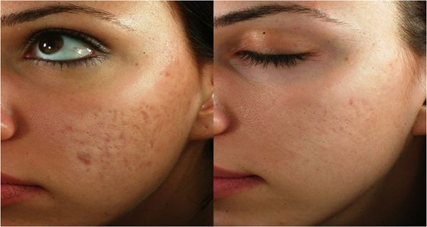 Very easy preparable and quite effective natural carrot mask… Carrots are very good for skin care, because they are rich in vitamin A. Vitamin A is good for reducing scars caused by acne and...