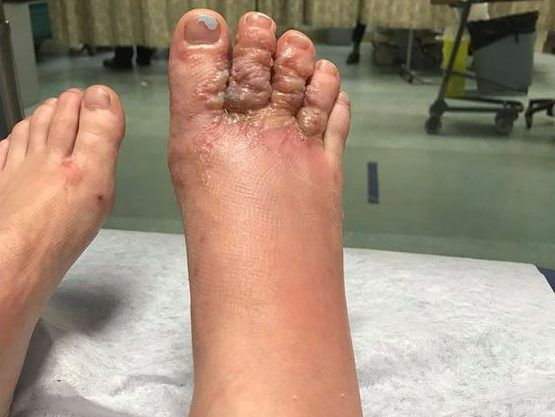 VACATION HORROR: Experts warn of Hookworm-related skin infection risks when travelling to tropical destinations